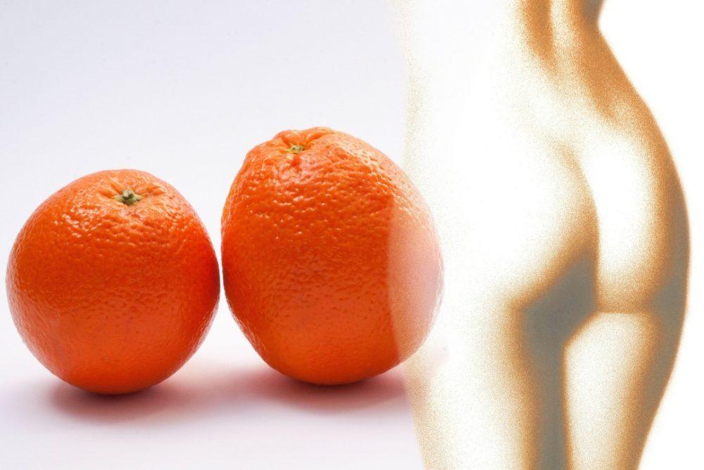 tratamiento piel de naranja-En Manos de Nara