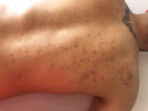 acne en espalda-En Manos de Nara